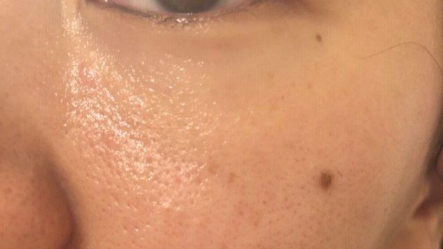 開き毛穴セルフケア始めて1ヵ月後の頬