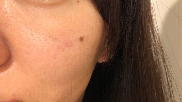開き毛穴セルフケアはじめて1ヵ月半後の頬
