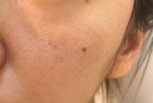 ドクターウーマンデル酸セラム美容液使った初日の肌