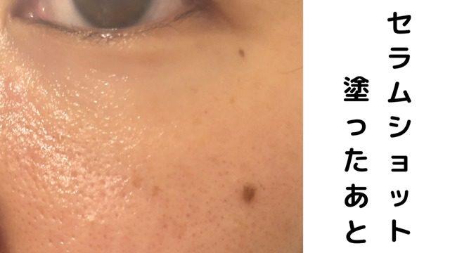 セラムショット塗った後の肌
